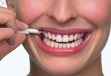 http://www.mundodastribos.com/implantes-dentarios-gratuitos.html