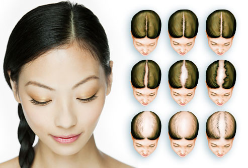 webmd_rf_photo_of_hair_loss_chart.jpg