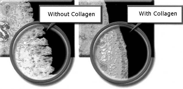 WithAndWithoutCollagen_joint.jpg
