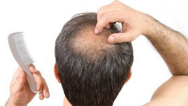 hair loss-2.jpg