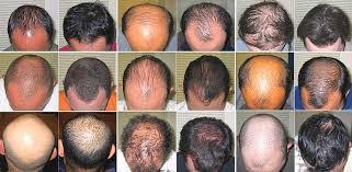 hair loss-1.jpg