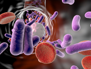 Is sepsis a factor?