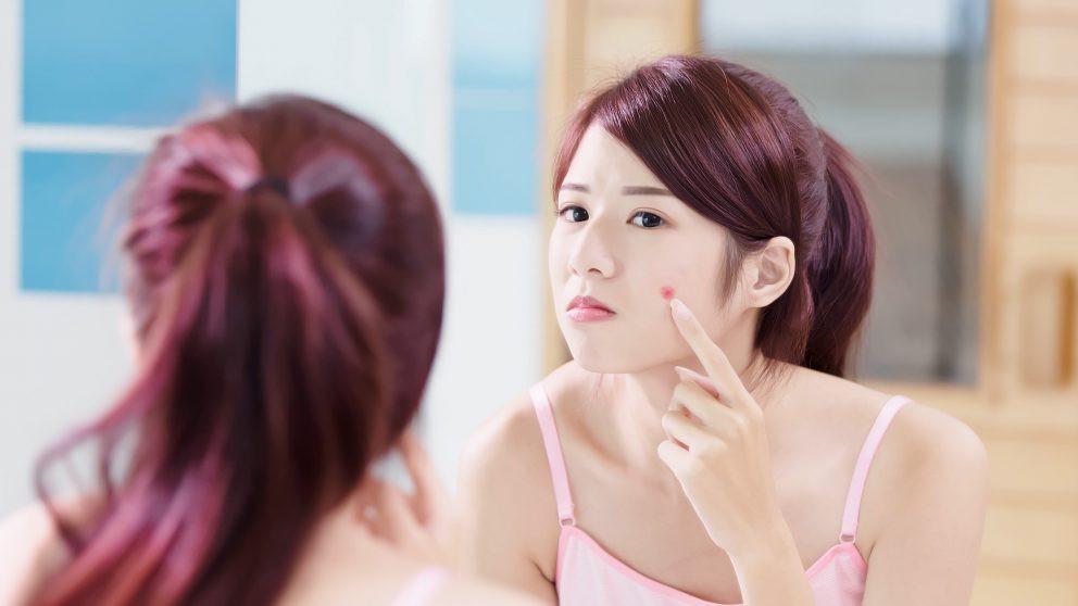 loreal alibaba china acne dermatologo belleza comesticos inteligencia artificial