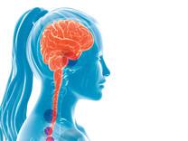 Podezření na RS a bolesti hlavy. Kauza paní M.D.