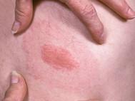 Jak lékaři (ne)umějí léčit boreliózu