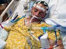 Po chrípkovej vakcíne skončil muž v nemocnici