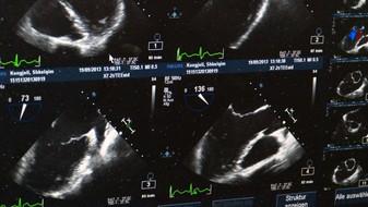 Ženě diagnostikovali dva nádory s metastázemi, byla to ale jen tasemnice