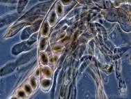 Tajemná mikrobiální temná hmota dominuje naší planetě