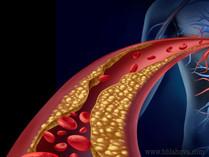 Štúdia odhalila vyše 300 utajovaných nežiaducich účinkov liekov na cholesterol