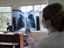 Dělníci z ciziny do Česka přicházejí nemocní. Mají TBC, žloutenku i svrab