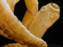 Deset let měl v mozku larvu tasemnice