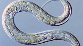 Ako črevné parazity infikujú ľudí