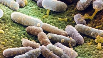 Vědci zjistili, jak se vyvíjejí nebezpečné bakterie