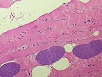Sarcocystis