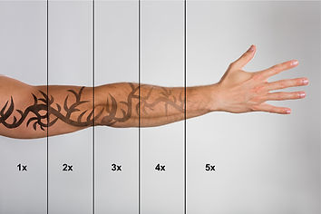 Laser-Tatoo-Removal-Bloom-Skin-and-Spa.j