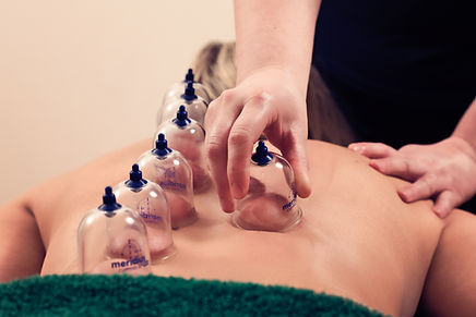 Sports and remedial massage at Pear Tree Therapies with Myofascial Cups
