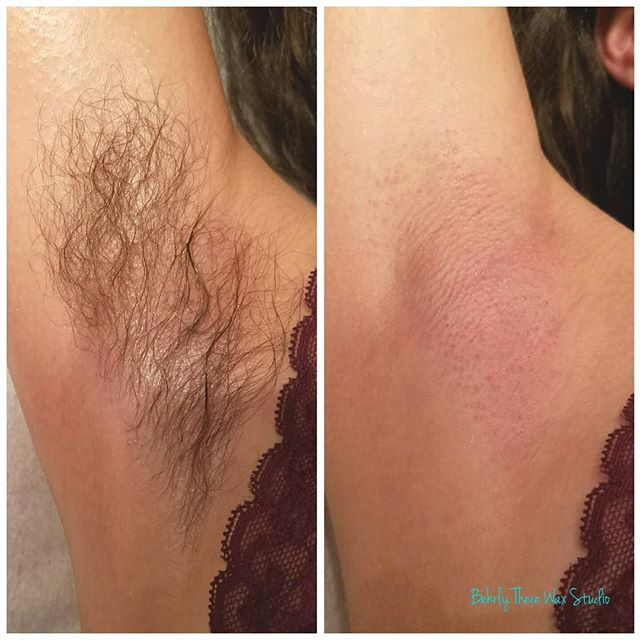 Before and after underarm wax! I recomme