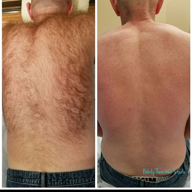 Look at what a difference a back wax can