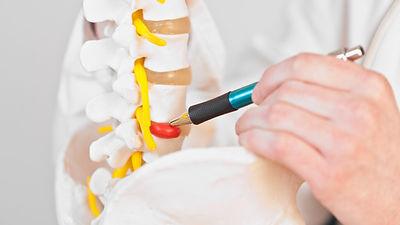 quiropraxia-para-hernia-de-disco.jpg