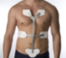 CASH spinal brace coronal.png
