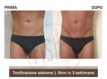 tonificazione ventre - centri Fisico Thiene Trissino Vicenza Bassano