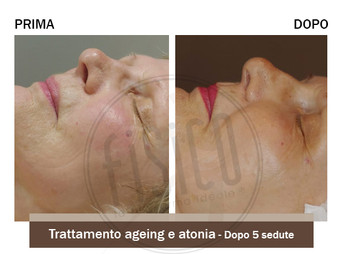 Risultati di trattamenti viso antiage macchie couperose rosacea cicatric - centri Fisico Thiene Trissino Vicenza Bassano