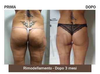 Percorsi di trattamenti corpo 4 | Foto prima e dopo