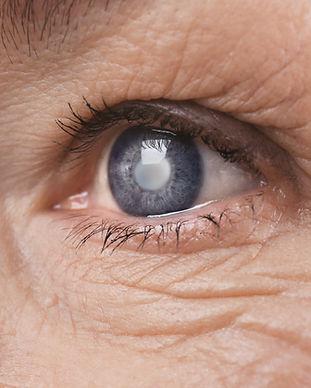 Cataract concept. Senior woman's eye, cl