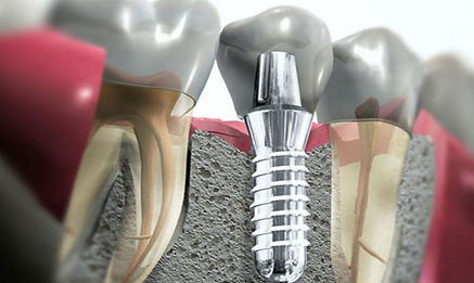 Имплантация зубов 30000 руб.
