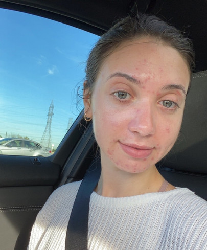 5 things that helped me become more confident in my skin
