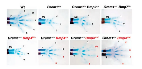 REPORT A Self-Regulatory System of Interlinked Signaling Feedback Loops Controls Mouse Lim