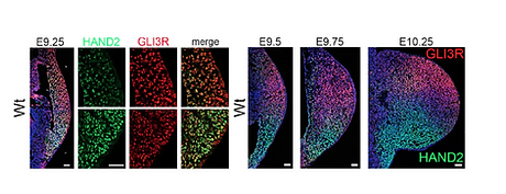 HAND2 Targets Define a Network of Transcriptional Regulators that Compartmentalize the Ear