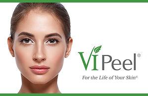 news-ViPeel3.jpg