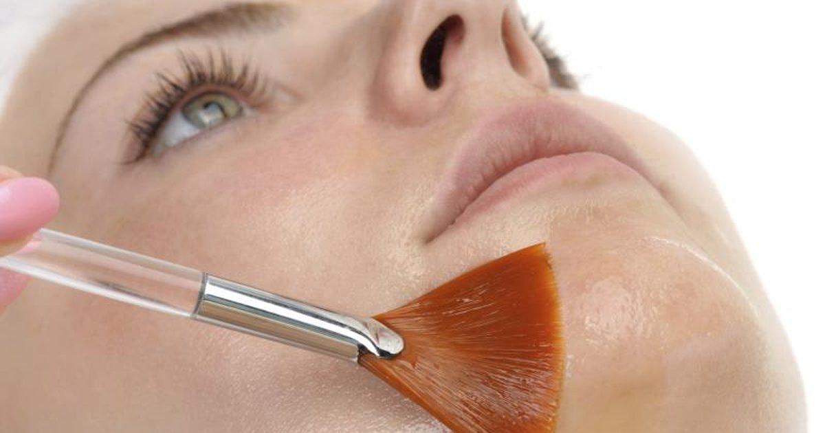 Salicylic Peel Facial