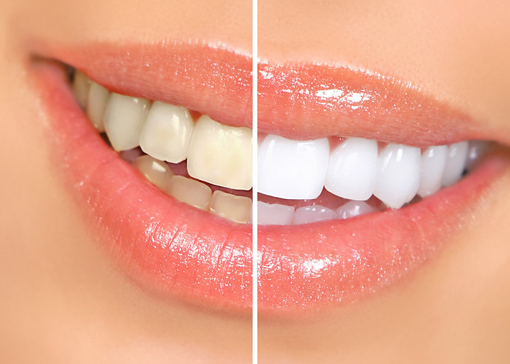 woman teeth before and after whitening.