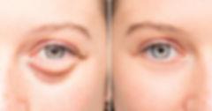 baggy-eyes-solution-FI-800x419.jpg