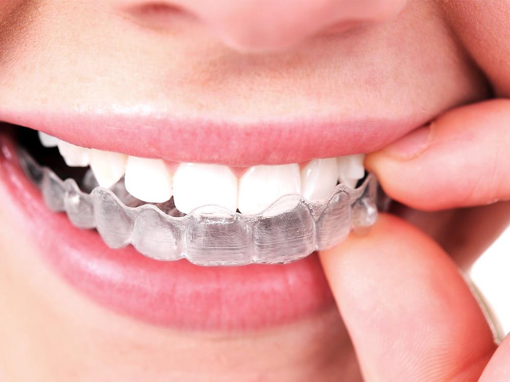 Orthodontist Singapore, Braces Singapore, Dr Chua Ai Lian Orthodontic Clinic, Orthodontic Treatment Singapore, Retainers Singapore, Invisalign Singapore