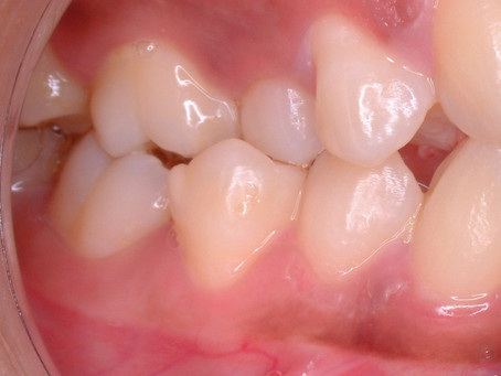 Malocclusion (Part II) - Causes of Malocclusion (Singapore Orthodontics)