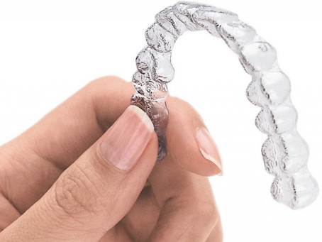 What is Invisalign? (Part I)