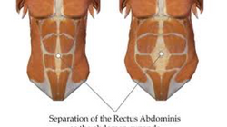 Abdominal Separation - will my muscles ever come back together?