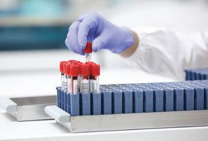 A relação entre a biotina e os testes laboratoriais