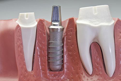 Consulta - Implante Dentário