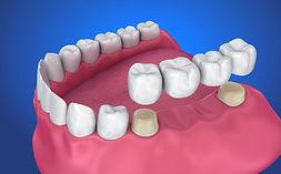 Dental-crown-and-Bridge-768x476.jpg.opti