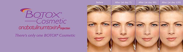 botox-cosmetic-slide.jpg