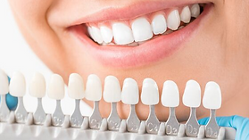 Teeth-Whitening-Blog.png