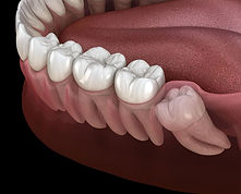 wisdom-teeth.jpg