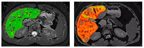 Liver-image-perspectum.jpg