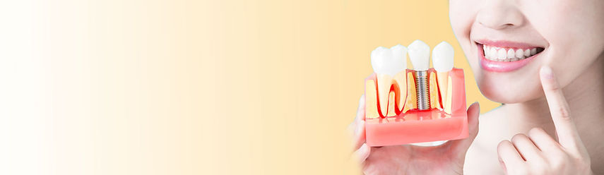 Slider-Dental-implant-lead-page.jpg