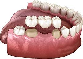 Dental-Bridge.jpg