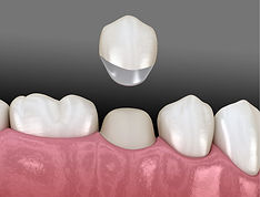 4.1-Dental-crowns.jpg